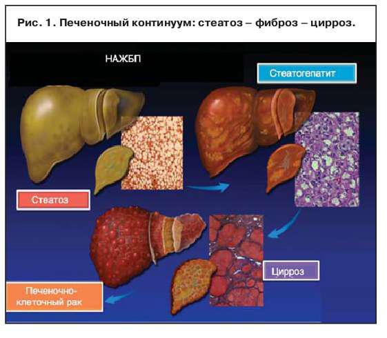 Хронические вирусные гепатиты в с и d