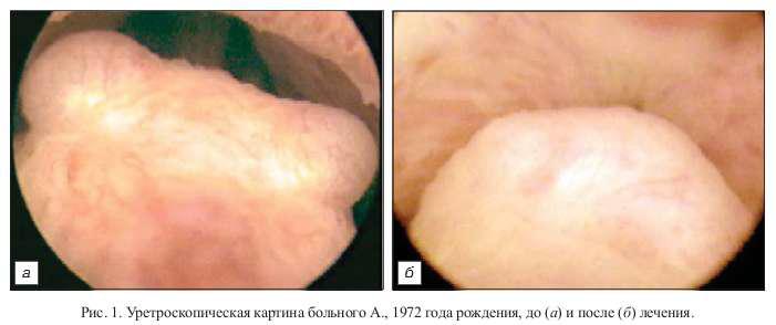 Лечение хронического урогенитального трихомониаза