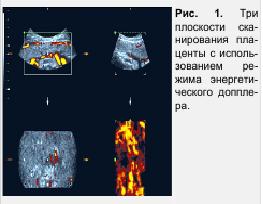 Рис. 1. Три плоскости сканирования плаценты с использованием режима энергетического допплера