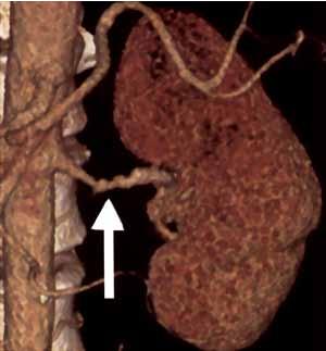 Рис. 5. Данные КТ ангиографии больной П., 19 лет: множественные стенозы почечной артерии при ФМД (обозначены стрелкой)