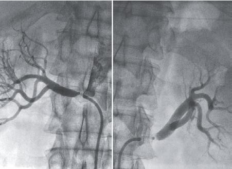 Рис.6. Данные аортографии больного П., 65 лет: двусторон-ние стенозы устьев почечных артерий при атеросклеротиче-ском поражении