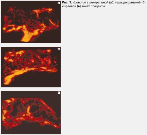 Рис. 3. Кровосток в центральной, парацентральной и краевой зонах плаценты