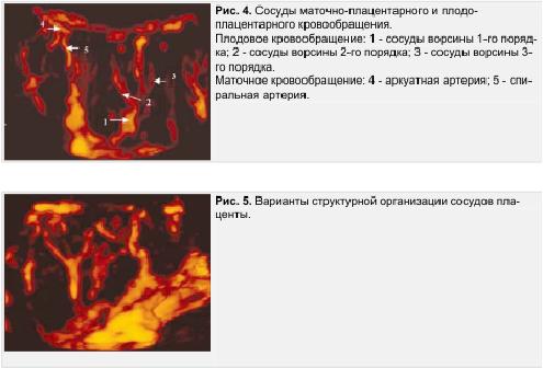 Рис. 4. Сосуды маточно-плацентарного и плодо-плацентарного кровообращения