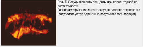 Рис. 6. Сосудистая сеть плаценты при плацентарной недостаточности