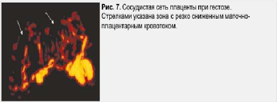 Рис. 7. Сосудистая сеть плаценты при гестозе. Стрелками уазана зона с резко сниженым плацентарным кровотоком