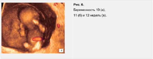 Рис. 6. Беременность