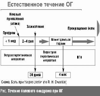 Течение болевого синдрома при ОГ
