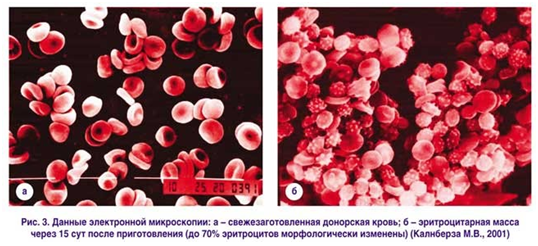Данные электронной микроскопии