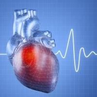 Стратификация риска тромбоэмболических осложнений