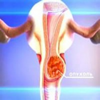 Уреаплазмоз и микоплазмоз