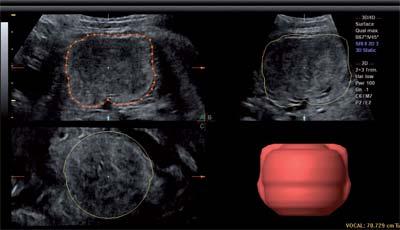 Рис. 7. Расчет объема опухоли в режиме объемной реконструкции.