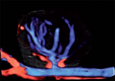 """Рис. 9. Сосудистая сеть опухоли в режиме объемной реконструкции с использованием функции """"прозрачное тело"""" и цветового допплеровского картирования."""