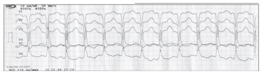 Случай безболевого инфаркта миокарда у больной с хронической обструктивной болезнью легких