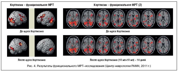 Рис. 4. Результаты функционального МРТ-исследования