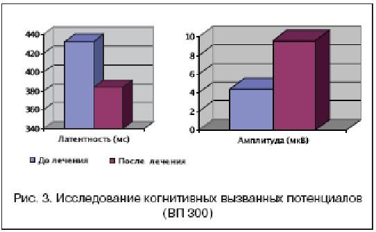 Рис. 3. Исследование когнитивных вызванных потенциалов