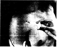Инъекция в плечевой сустав (передний доступ)