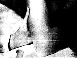 Инъекция в локтевой сустав (задний доступ)