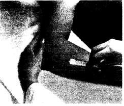 Инъекционная терапия при латеральном эпикондилите