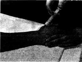 Инъекция в лучезапястный сустав