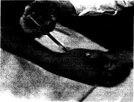 Инъекция в запястно-пястный сустав I пальца