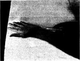 Инъекция при синдроме запястного канала