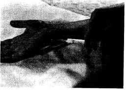 Инъекция при синдроме канала Гуйона Болезнь де Кервена