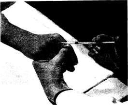 Инъекция в пястно-фаланговый сустав