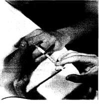 Инъекция в проксимальный межфаланговый сустав