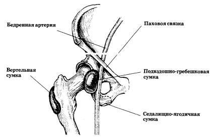 Тазобедренный сустав (вид спереди): расположение слизистых сумок