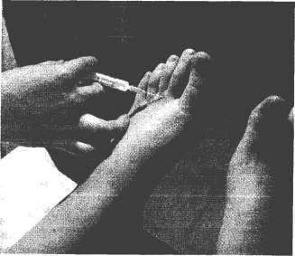 Инъекция в плюсне-фаланговый сустав