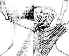 Топография нижней косой мышцы головы. Определение точки инъекции
