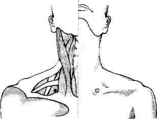 Топография передней лестничной мышцы. Определение точки инъекции