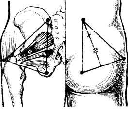 Топография грушевидной мышцы. Определение точки инъекции