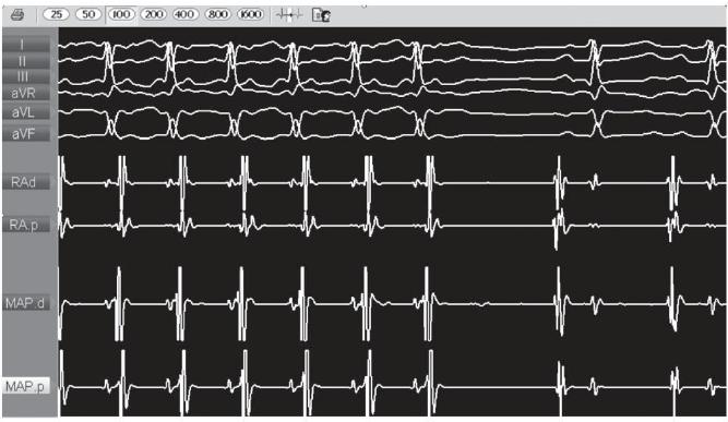 Фрагмен внутрисердечного электрофизиологического исследования - устранение тахикардии во время РЧА у пациентки в возрасте 2 месяцев с внутрипредсердной re-entry тахикардией, манифестировавшей на 37 неделе гестации.