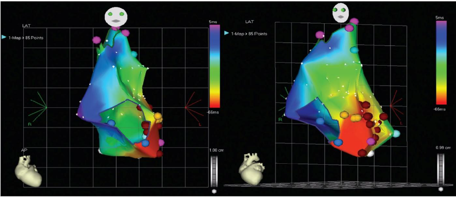 Фрагмент внутрисердечного электрофизиологического исследования с применением системы Carto у пациента в возрасте 5 мес