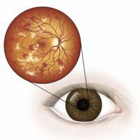 Зрение при сахарном диабете
