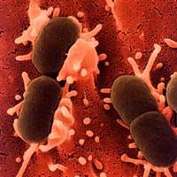 Дисфункция эндотелия при перитоните