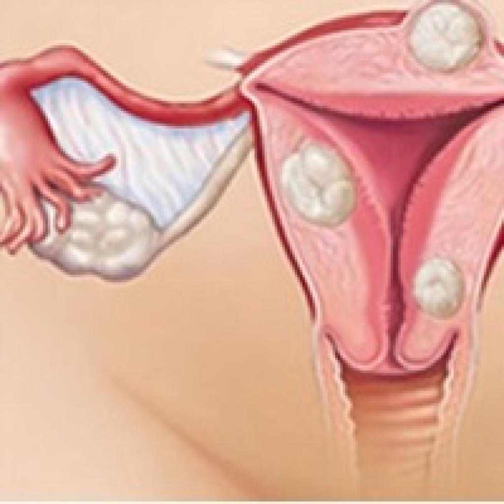 Как остановить маточное кровотечение в домашних условиях при миоме 42