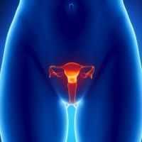 Диагностика синдрома поликистозных яичников