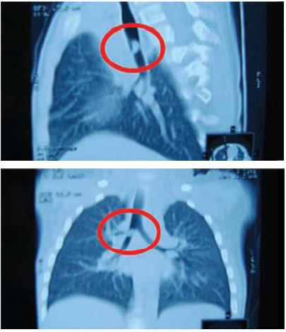 Комп'ютернаа томографія (пряма і боккова прооекції) органів ггрудної кліткии хлопчика А.К.,, 2 роки.Остатточний діагноз : стороннє тііло у правому головвному бронху
