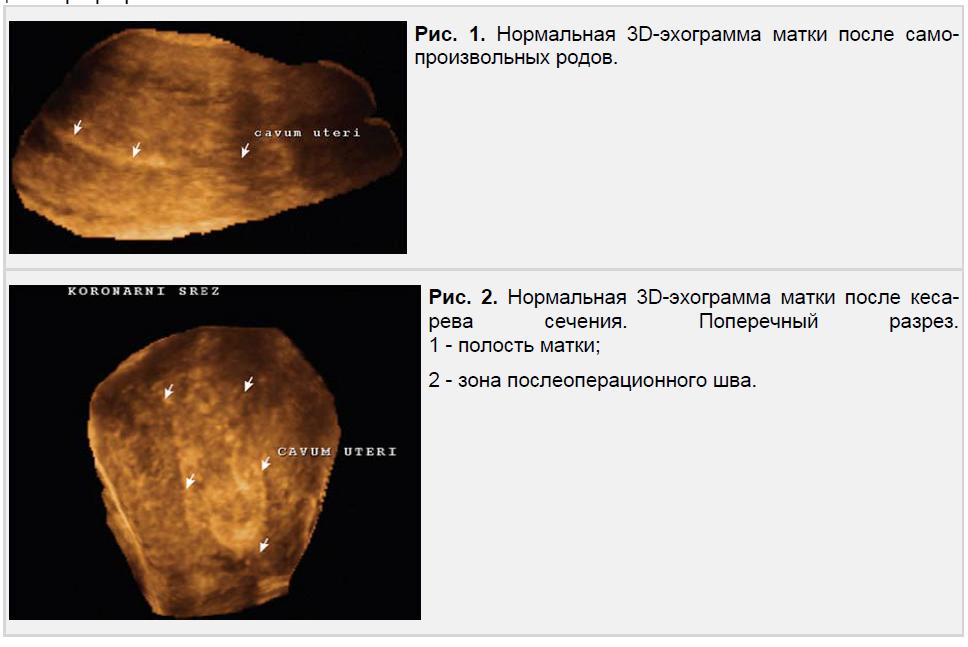 Нормальная 3D-эхограмма матки