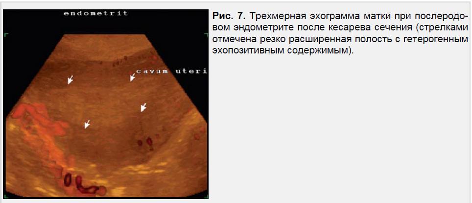 Трехмерная эхограмма матки при послеродовом эндометрите после кесарева сечения
