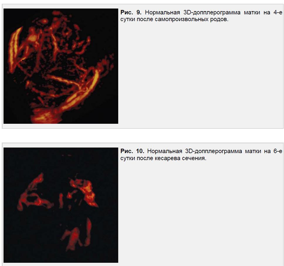 Нормальная 3D-допплерограмма матки на 4-е и 6-е сутки после кесарева сечения.