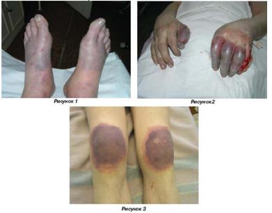Замерзание ІІ ст., отморожение дистальных отделов кистей и стоп, областей коленных суставов в дореактивном периоде