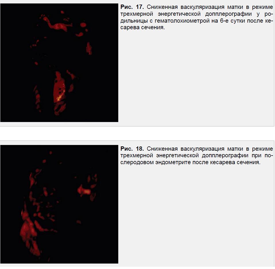 Сниженная васкуляризация матки в режиме трехмерной энергетической допплерографии