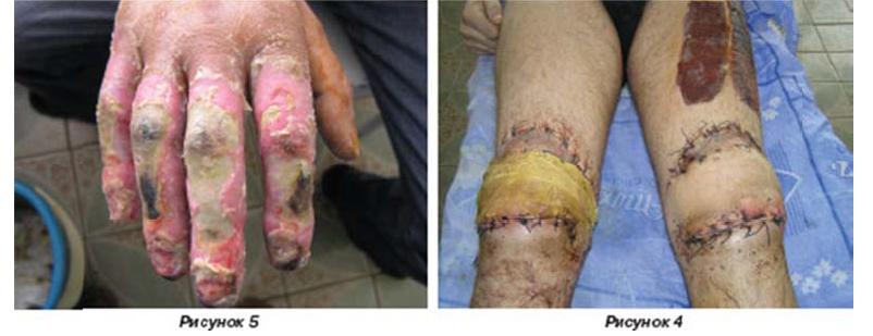 Первичная некрэктомия с устранением раневых дефектов методами «индийской» и «итальянской» пластик
