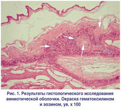 Результаты гистологического исследования амниотической оболочки. Окраска гематоксилином и эозином, ув. х 100
