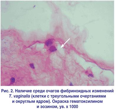 Наличие среди очагов фибриноидных изменений Т. vaginalis (клетки с треугольными очертаниями и округлым ядром). Окраска гематоксилином и эозином, ув. х 1000