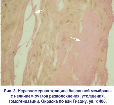 Неравномерная толщина базальной мембраны с наличием очагов разволокнения, утолщения, гомогенизации. Окраска по ваг Гизону, ув. х 400