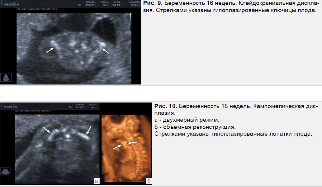 Беременность 16, 18 недель. Клейдокраниальная дисплазия. Кампомелическая дисплазия.